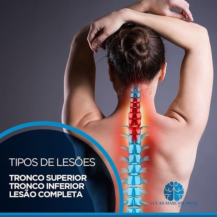 As lesões traumáticas do plexo braquial  com Dr. Lucas Mascarenhas