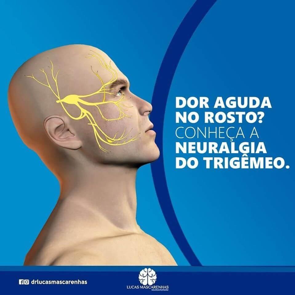 Já ouviu falar em Neuralgia do Trigêmeo?