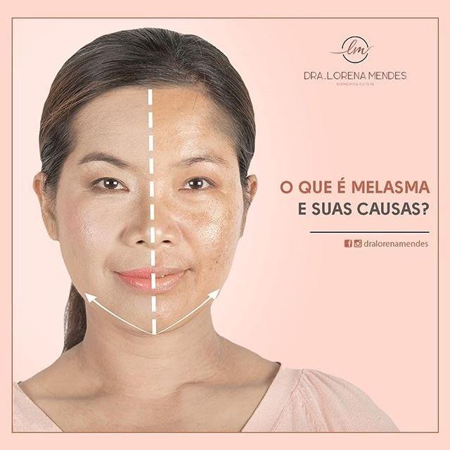 Entenda mais sobre o Melasma e suas causas!