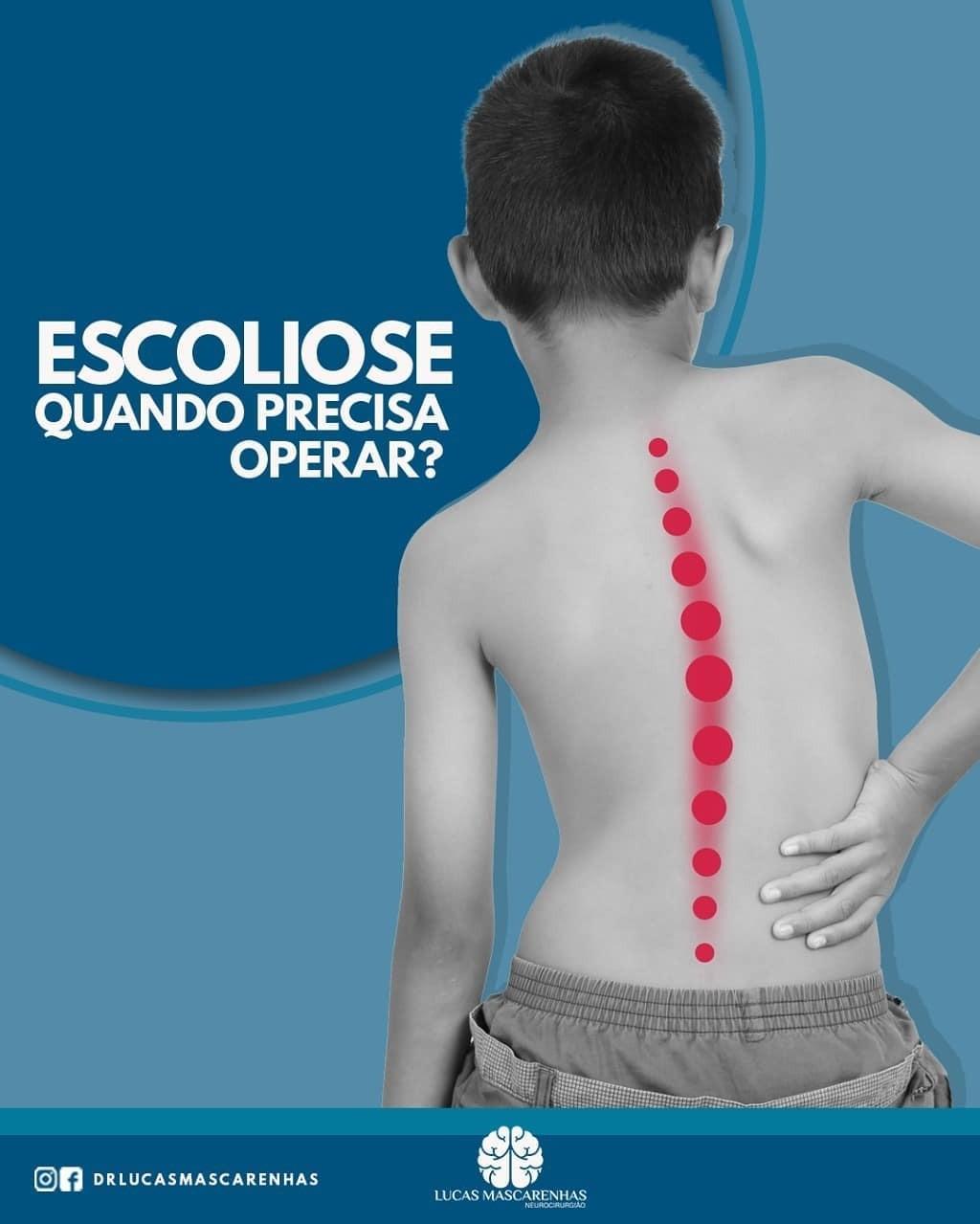 A escoliose pode ser operada?
