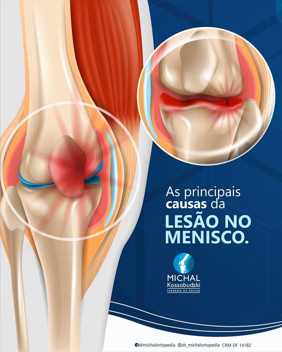 Causas principais da lesão do menisco!