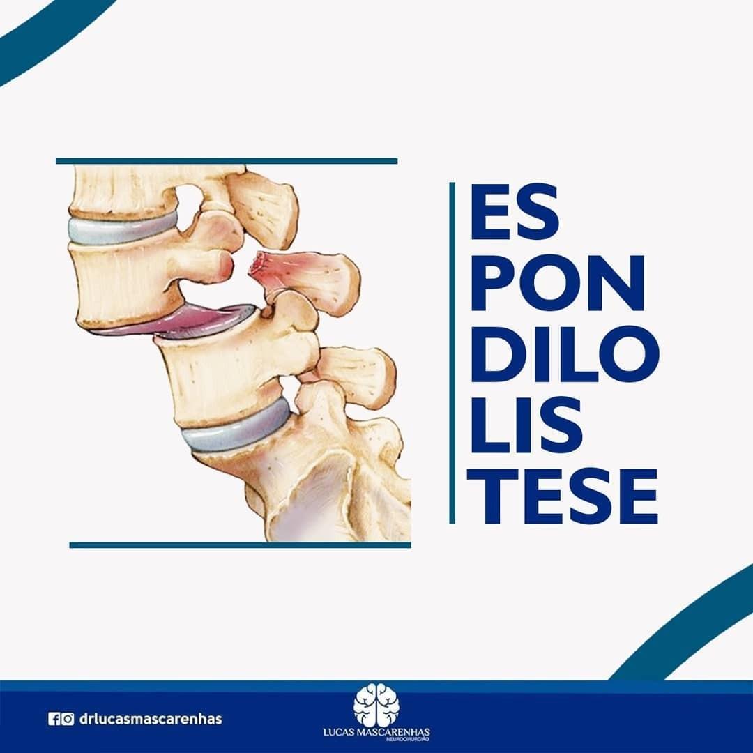 A espondilolistese é uma condição em que ocorre um escorregamento anormal de uma vértebra sobre a outra, adjacente.