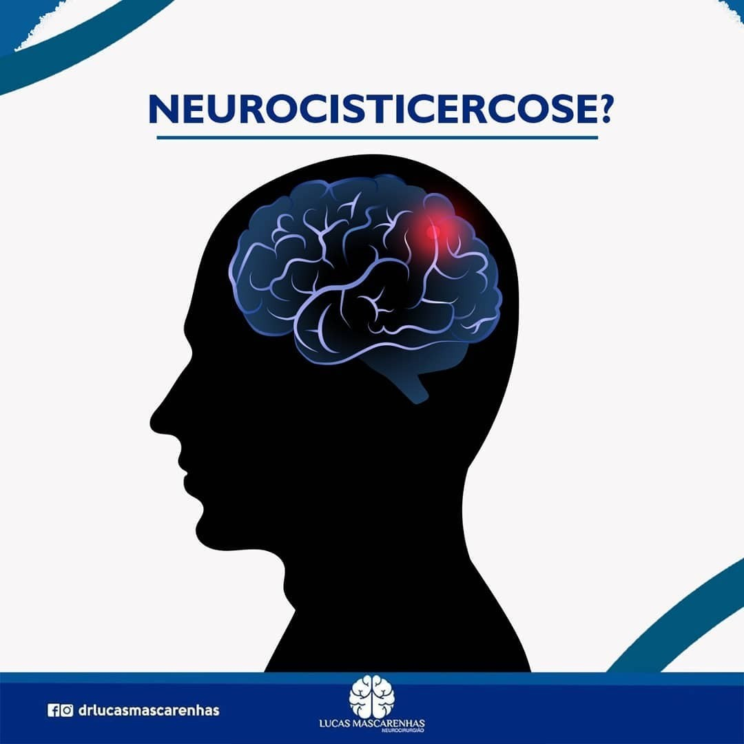 Parasitose cerebral.