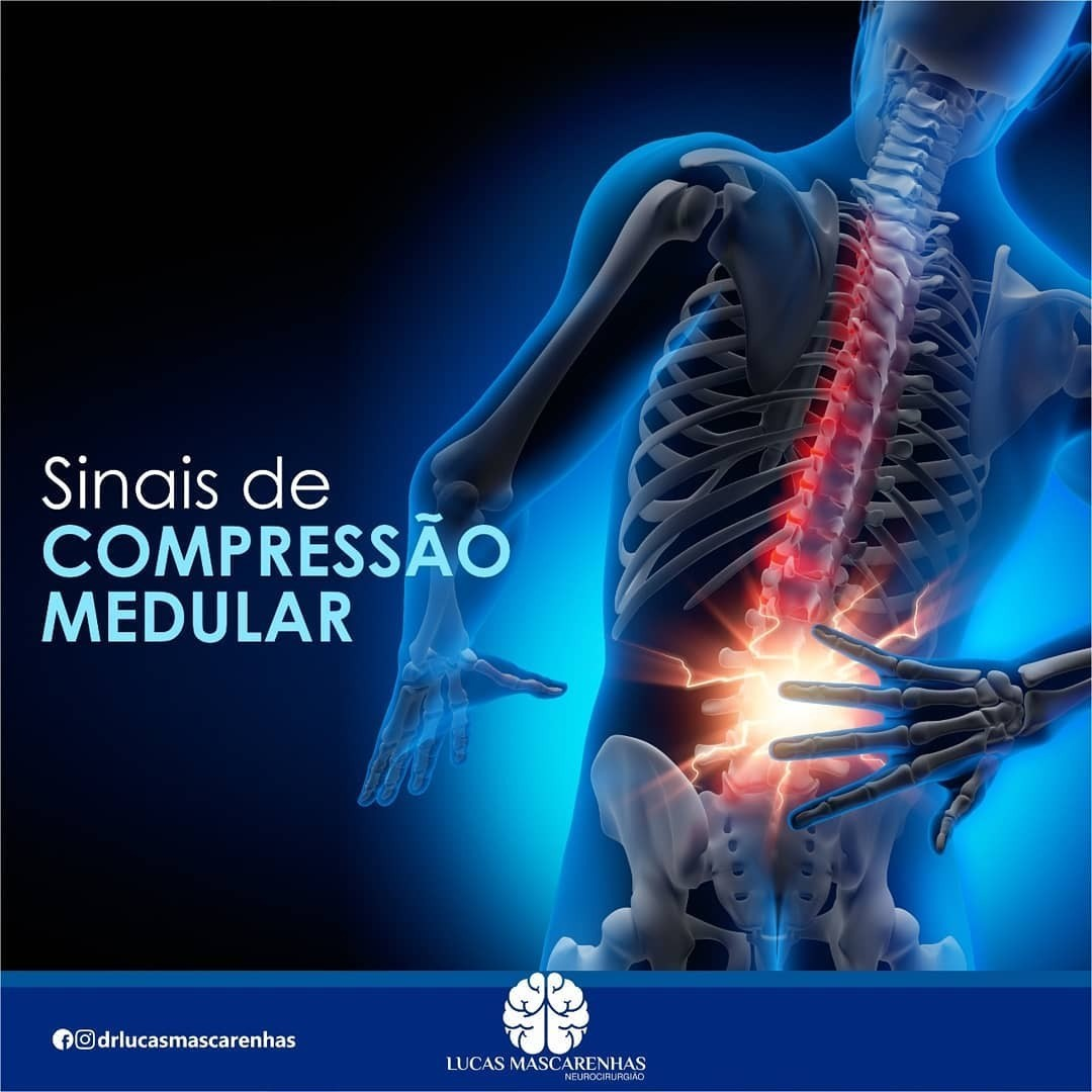 A  compressão medular